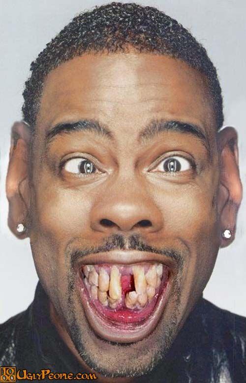 Pin on Ugly teeth