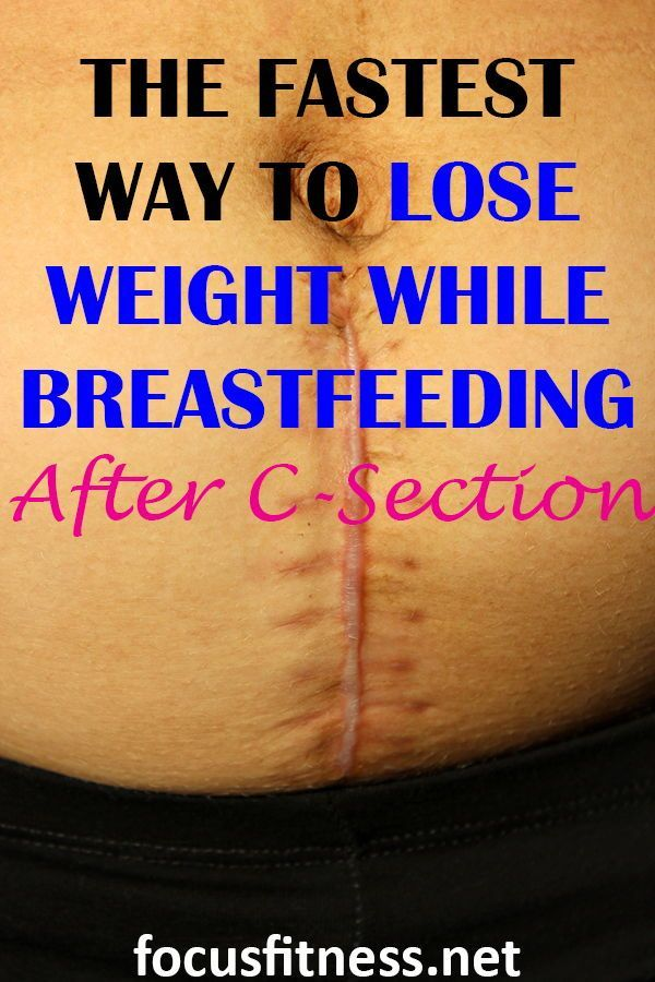 Photo of 12 Tips On How To Lose Weight After C-Section While Breastfeeding