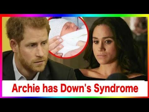 Prince Archie has Down syndrome! Harry and Meghan can not hide this