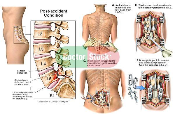 compression fracture l1 vertebrae after surgery