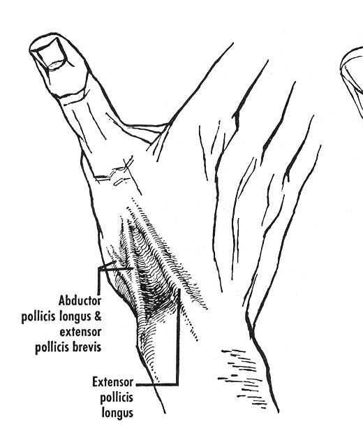 "the ""anatomical snuffbox."" the tendons of the abductor pollicis, Sphenoid"