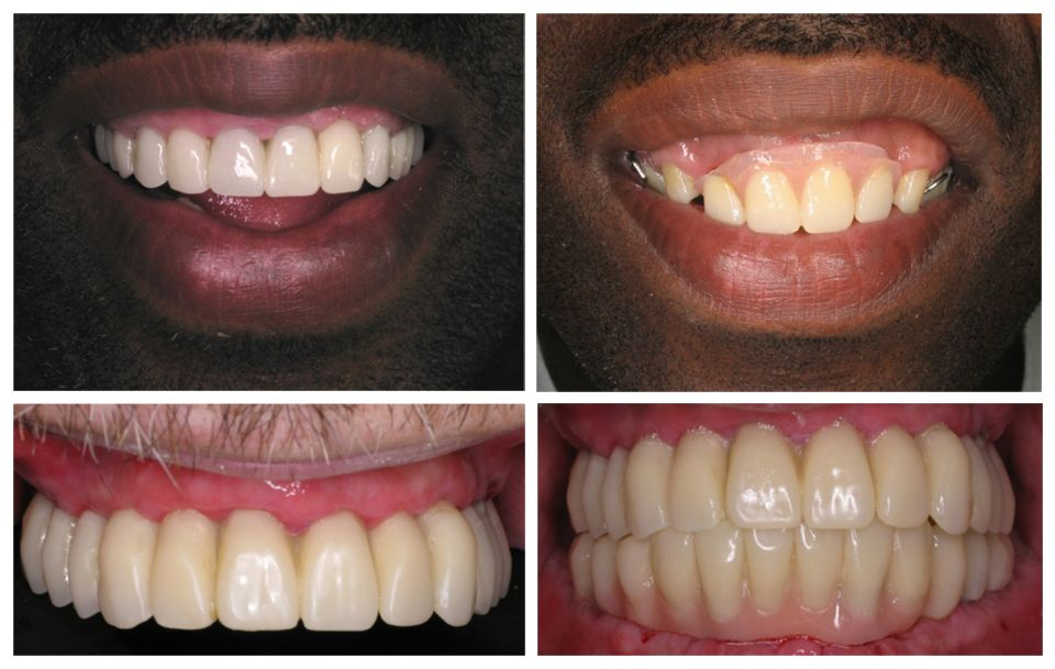 Denture Solutions is a full service Denture Practice, offering a ...