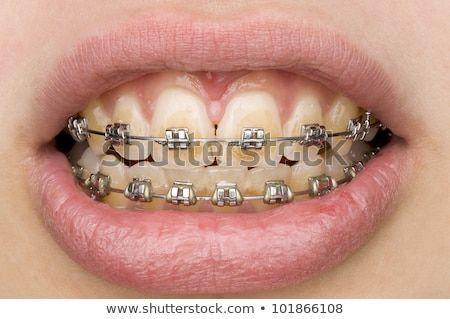Schlechte Mundhygiene Lizenzfreie Bilder 101866108 – Shutterstock   – Produtos de higiene bucal