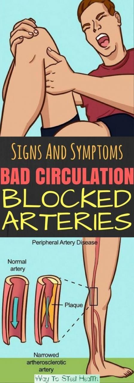 Signs and symptoms. Bad circulation blocked arteries  #lifehacks  #fitness
