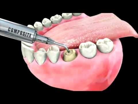 All Crowns Why Is A Dental Crown Needed Zirconium Crowns Pressed Ceramics Metal Crowns Metal Ceramic Crowns Dental Crowns Dental Cosmetic Dentistry Dental