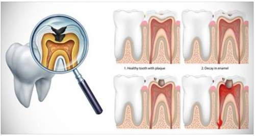 Reverse Cavities Heal Tooth Decay With These 5 Steps Heal Cavities Cavities Reduce Cavities