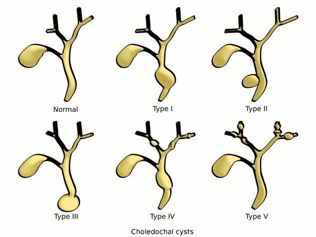 Choledochal Cyst Types Radiology Case Radiopaedia Org Cysts Radiology Medical Illustration