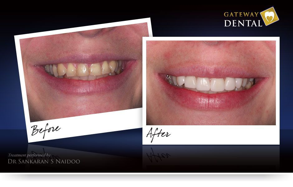 Cumbersome Fake Teeth Cosmetic Dentistry oralhealthmonth