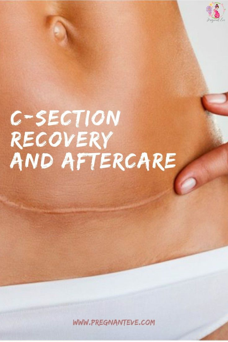 C-Section Recovery: Caesarean Aftercare | C section ...