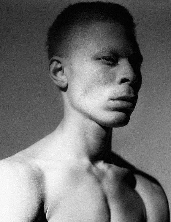 black albino dating