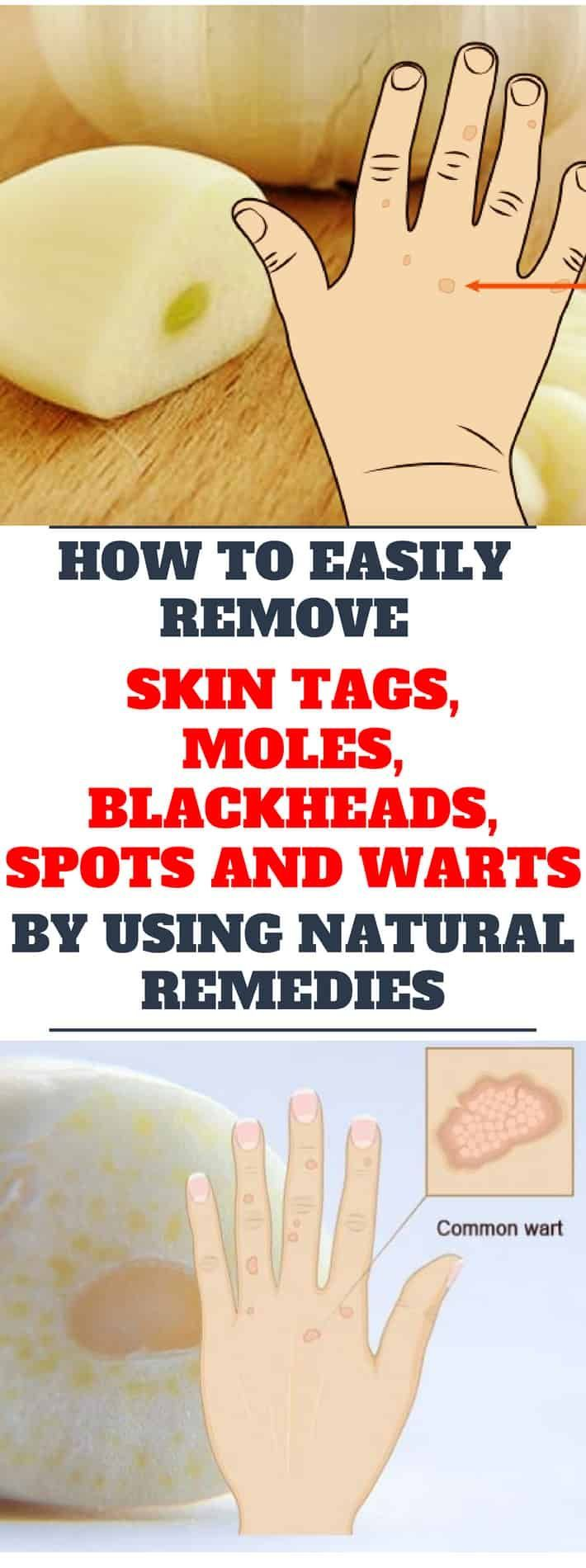 How to Easily Remove Skin Tags, Moles, Blackheads, Spots and Warts by Using Natural Remedies #skintagremedy