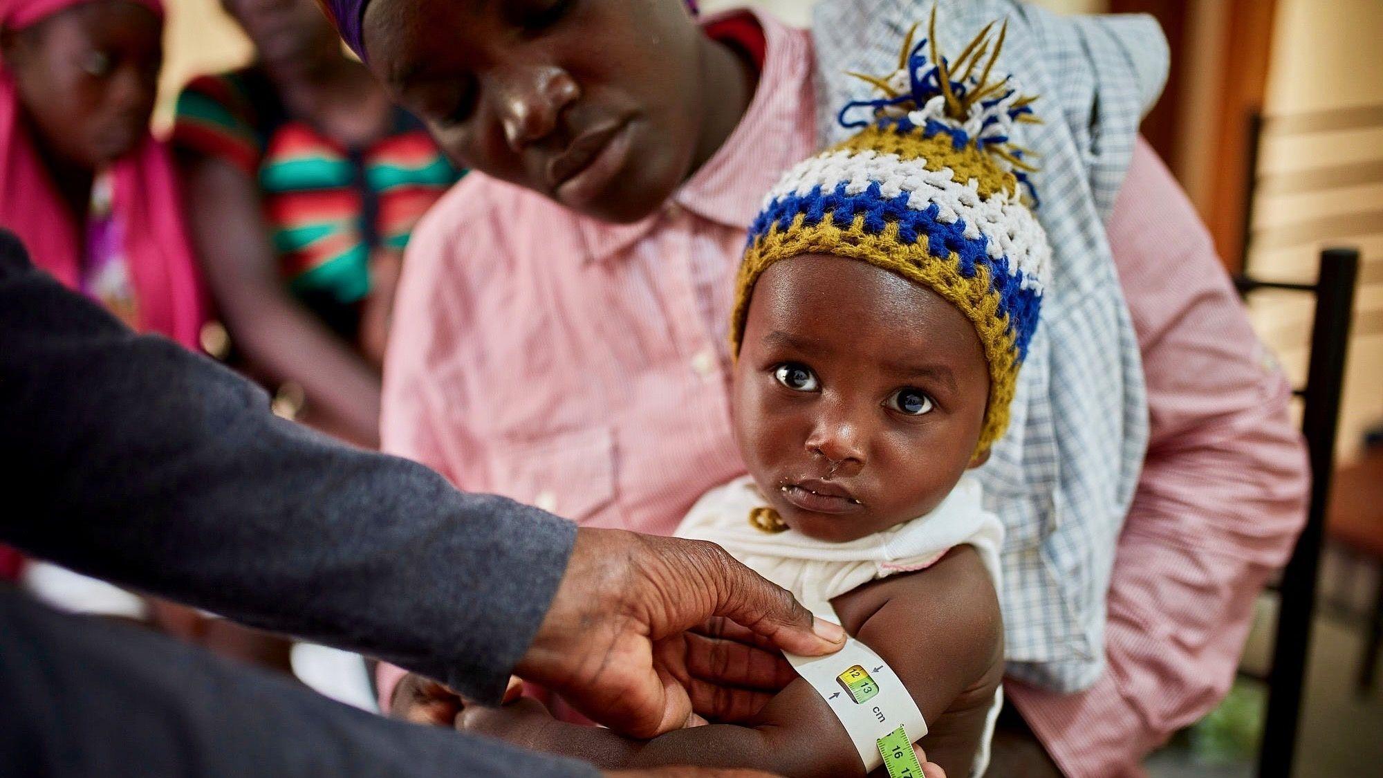 Opportunity begins where hunger ends malnourished