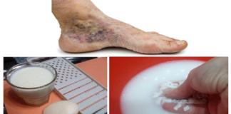Trápia vás kŕčové žily a trombóza? Na ich liečenie potrebujete len dve ingrediencie