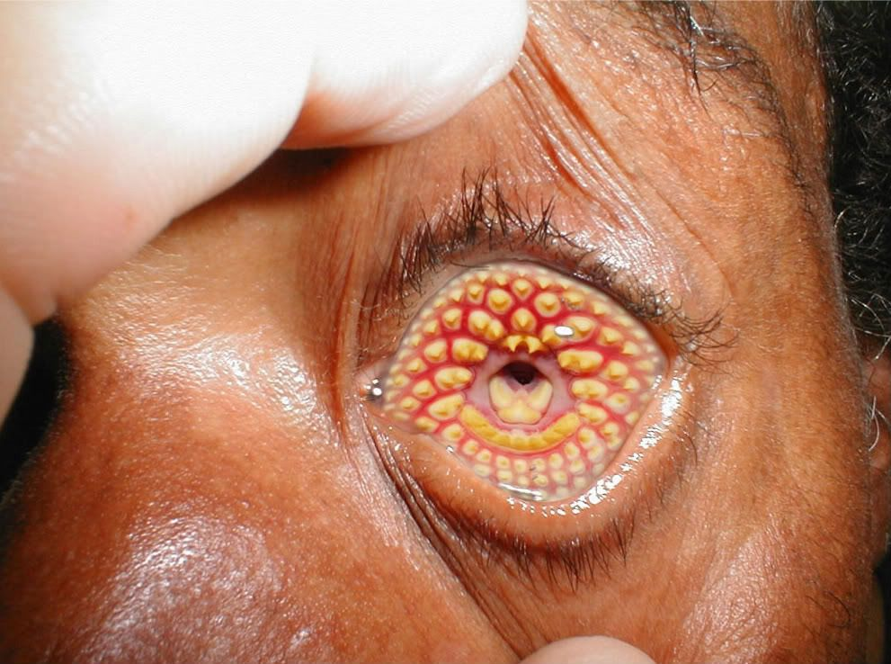Lamprey Eye Disease Lamprey Trypophobia Disease