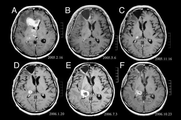 Imagens do cérebro produzidas por ressonância magnética funcional ...