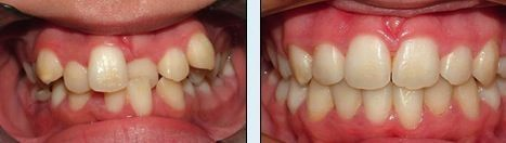 Más reciente   Foto  cuidado dental brackets  Popular,Antes y después de. ¡Una imagen vale má... #softfoodsaftersurgeryteeth