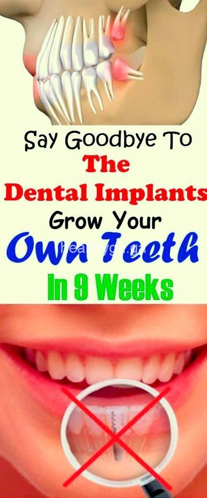 Incredible Discovery: Say Goodbye To The Dental Implants, Grow Your Own Teeth In 9 Weeks!!!!  #lifeh...