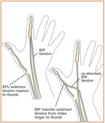 Tendon Transfer Surgery Eip To Thumb Guru3d Forums Anatomy