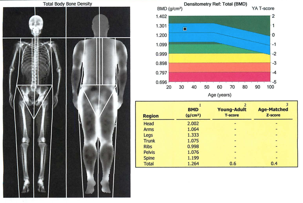 How Long Does It Take To Get Dexa Scan Results