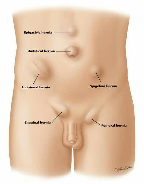 Foods To Eat After Inguinal Hernia Surgery