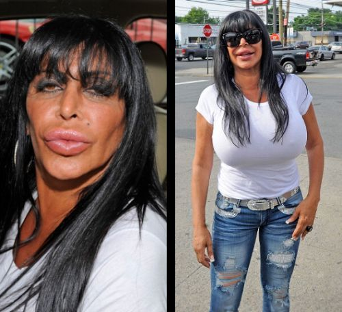Celebrity Plastic Surgery: The Good and the Botched ...