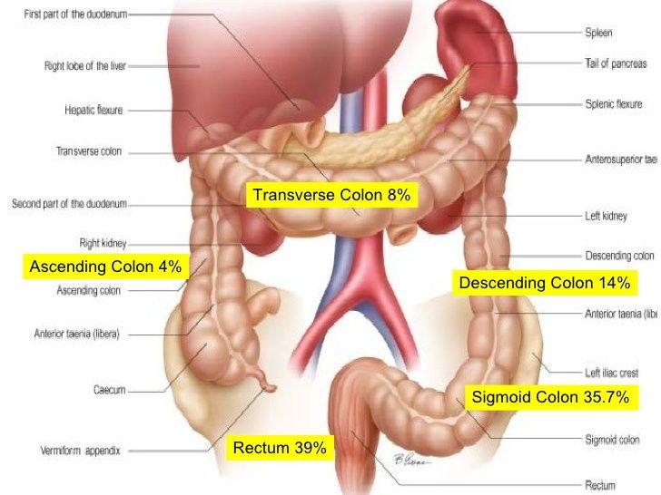 Ascending colon pain