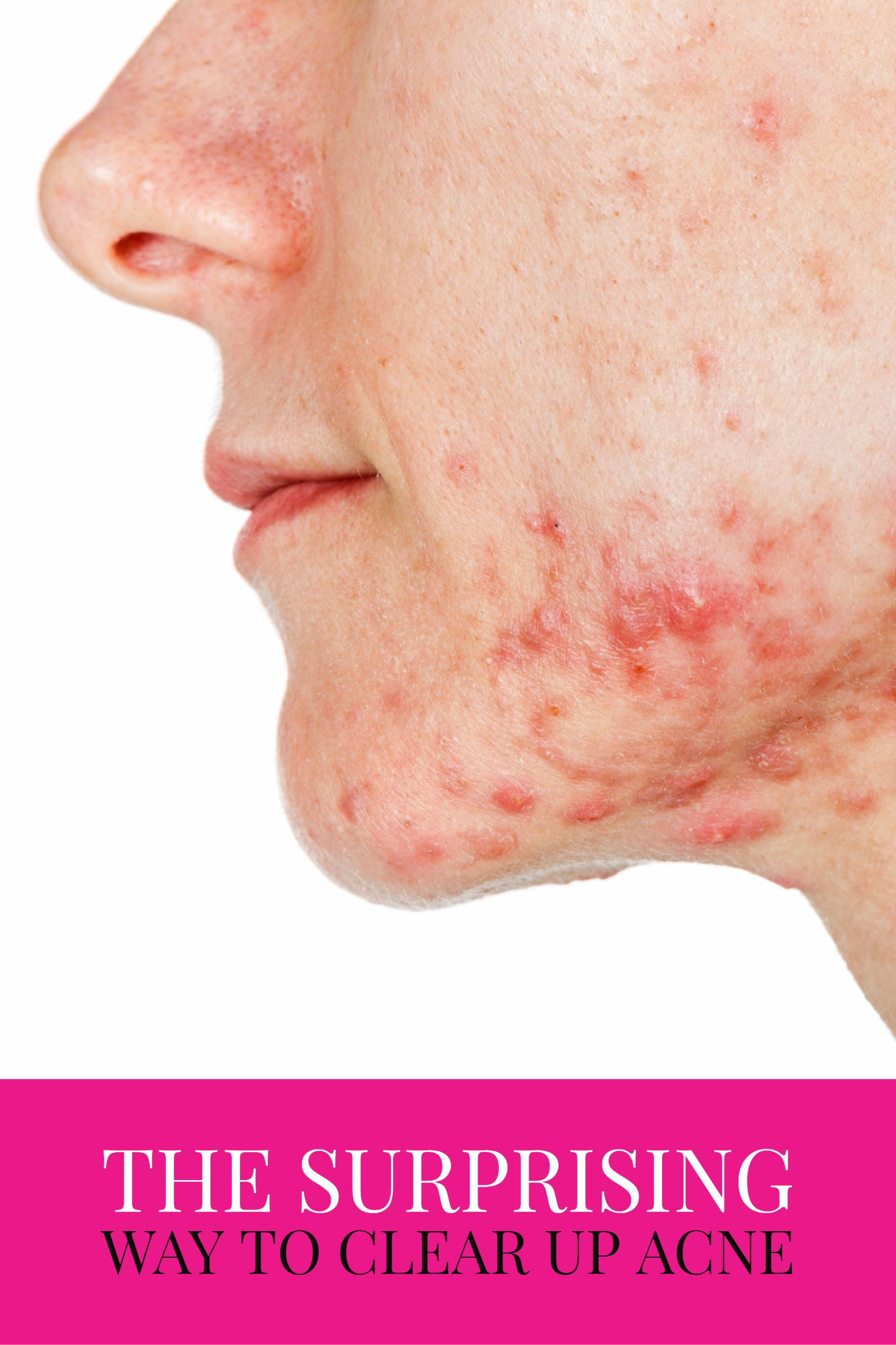 How to get rid of acne folk remedies