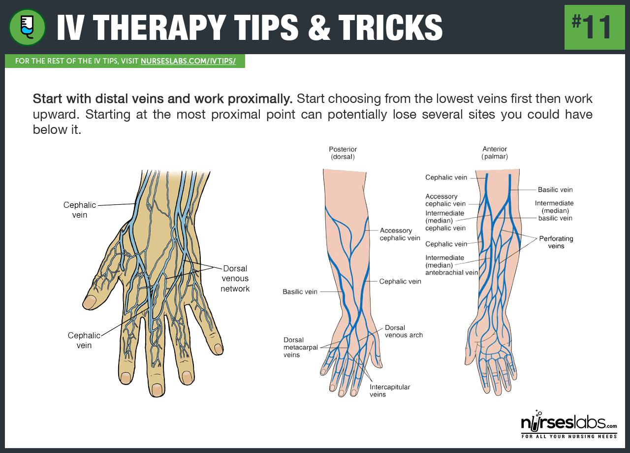 50 Iv Therapy Tips And Tricks How To Hit The Vein In One Shot