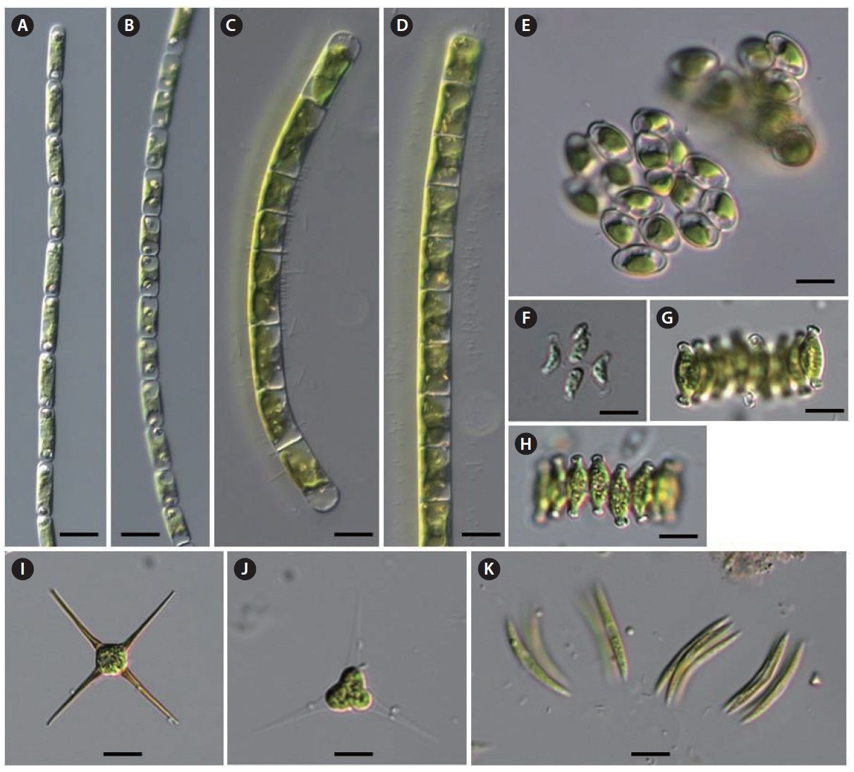 New Record Of Fresh Water Green Algae Chlorophytes From Korea Green Algae Algae Green [ 1095 x 1211 Pixel ]