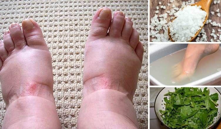 Naturliche Mittel Fur Geschwollene Fusse Und Beine Mit Bildern Fuss Heilmittel Geschwollener Fuss Geschwollene Beine