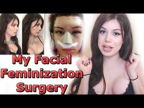 Beautiful facial feminizations