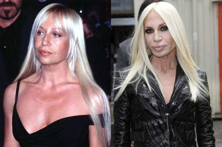 donatella versace face surgery celebs who didn 39 t age. Black Bedroom Furniture Sets. Home Design Ideas