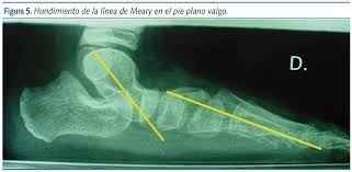 Resultado de imagen para medida del ante pie de pie de 4 años