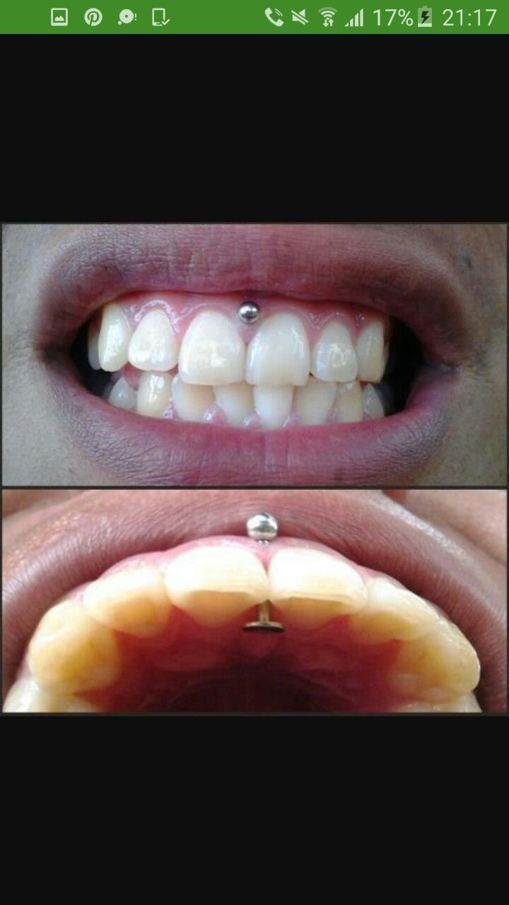 smiley piercing ont