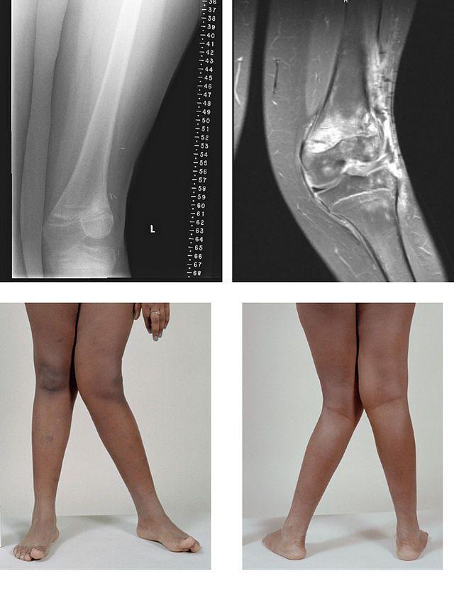 boka artritisz egy tinédzserben