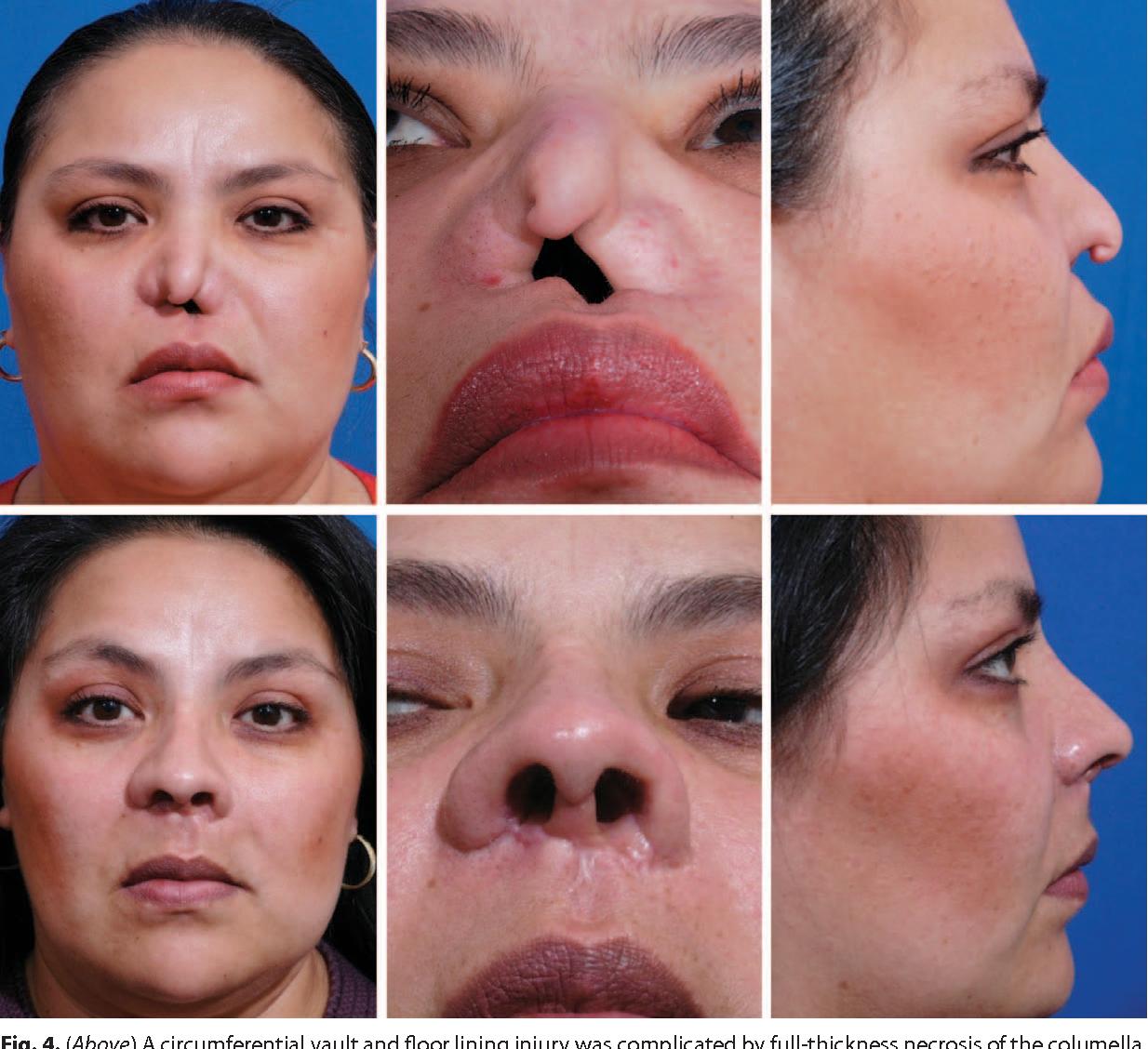 Image Result For Alar Skin Graft Skin Grafting Grafting Skin