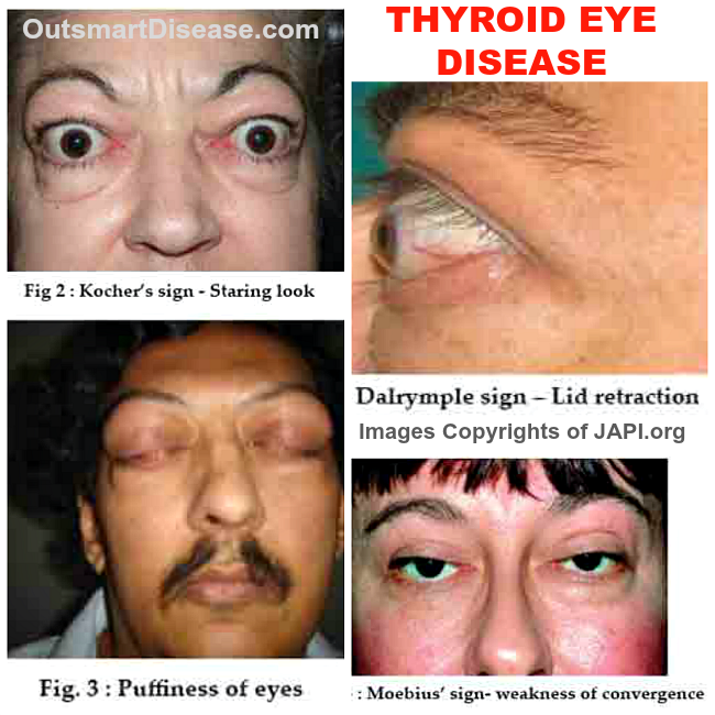 Thyroid Eye Disease Is An Autoimmune Inflammatory Disorder And Is