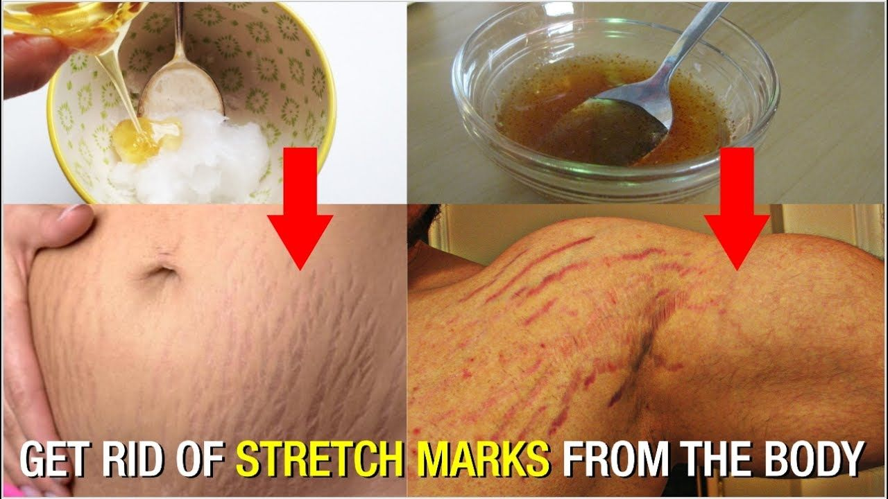 Home Remedies To Reduce Stretch Marks  Remove Stretch Marks At Home