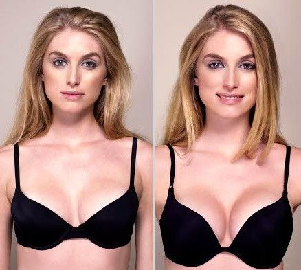 Comment grossir des seins, de la poitrine naturellement