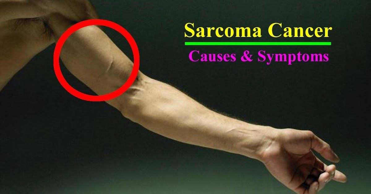sarcoma cancer arm)