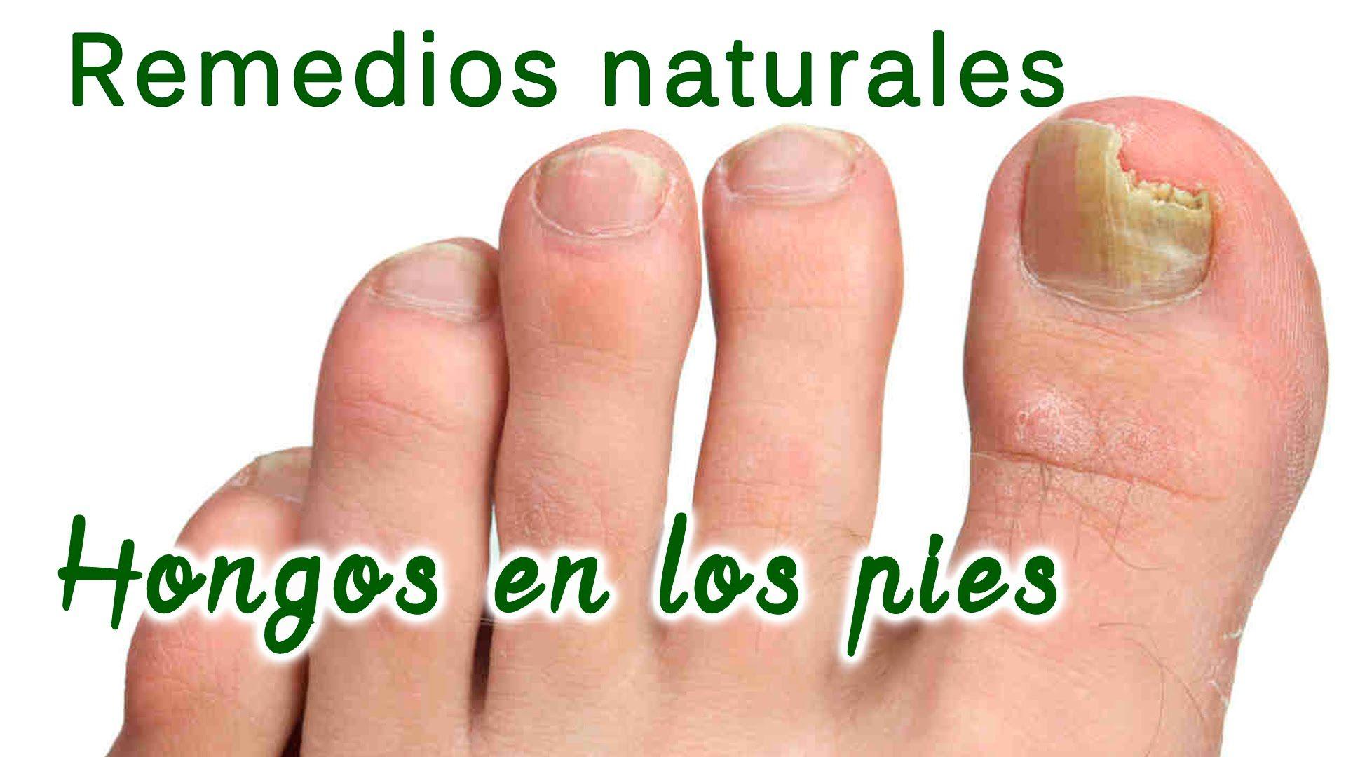Hongos en los pies y manos, remedios naturales para curarlos - vma ...