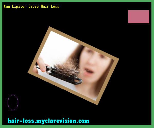 Can Lipitor Cause Hair Loss 16 - Hair Loss Cure! | Hair Loss ...