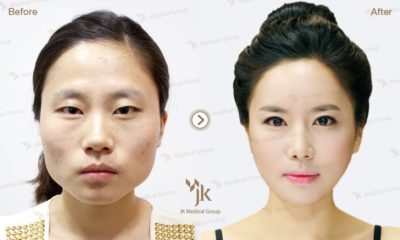 korean plastic surgery before&after jk plastic surgery in south