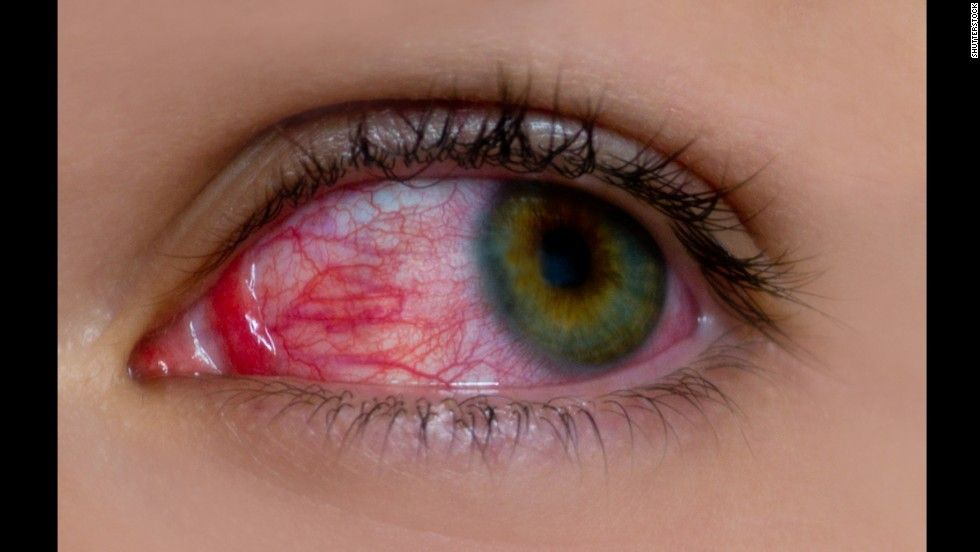 Childhood Uveitis Is A Rare Disease That Can Cause Blindness If Not Treated Early