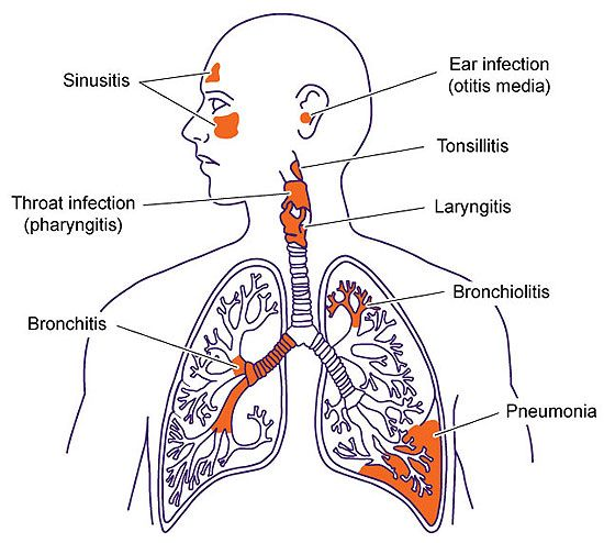 upper and lower respiratory tract infections respiratory tract