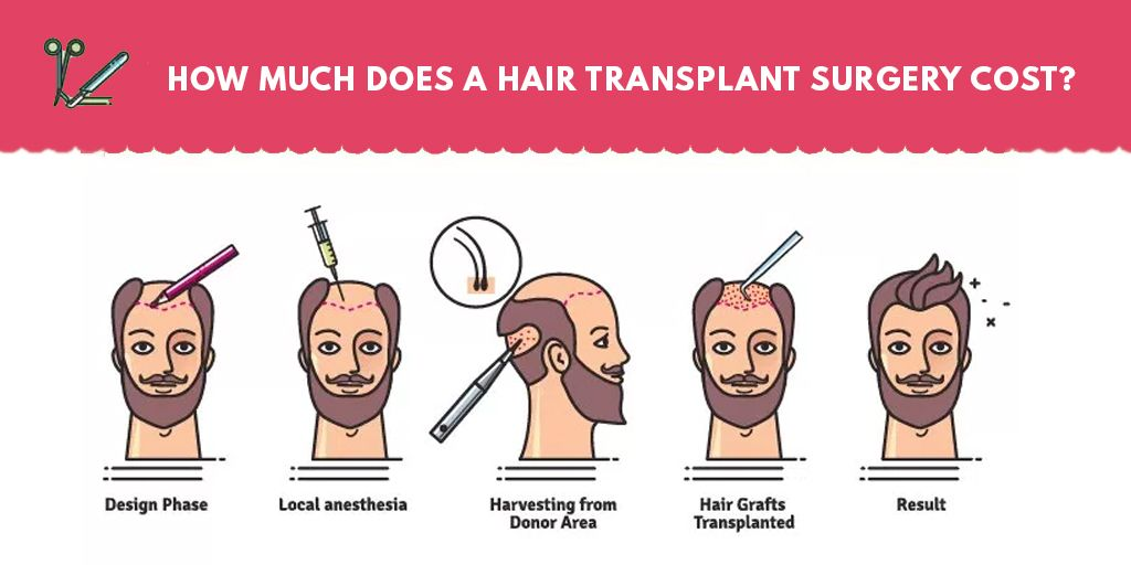 How much does a hair transplant surgery cost hair
