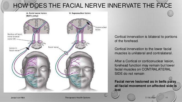 Vysledok Vyhľadavania Obrazkov Pre Dopyt Central Paresis Of Facial