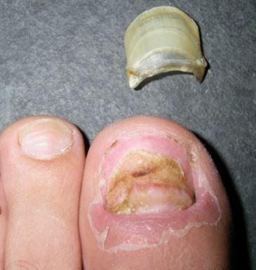 toenail falling off causes www skintots com pinterest toenail