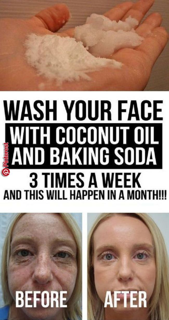 Wash Your Face With Coconut Oil And Baking Soda 3 Times A Week And
