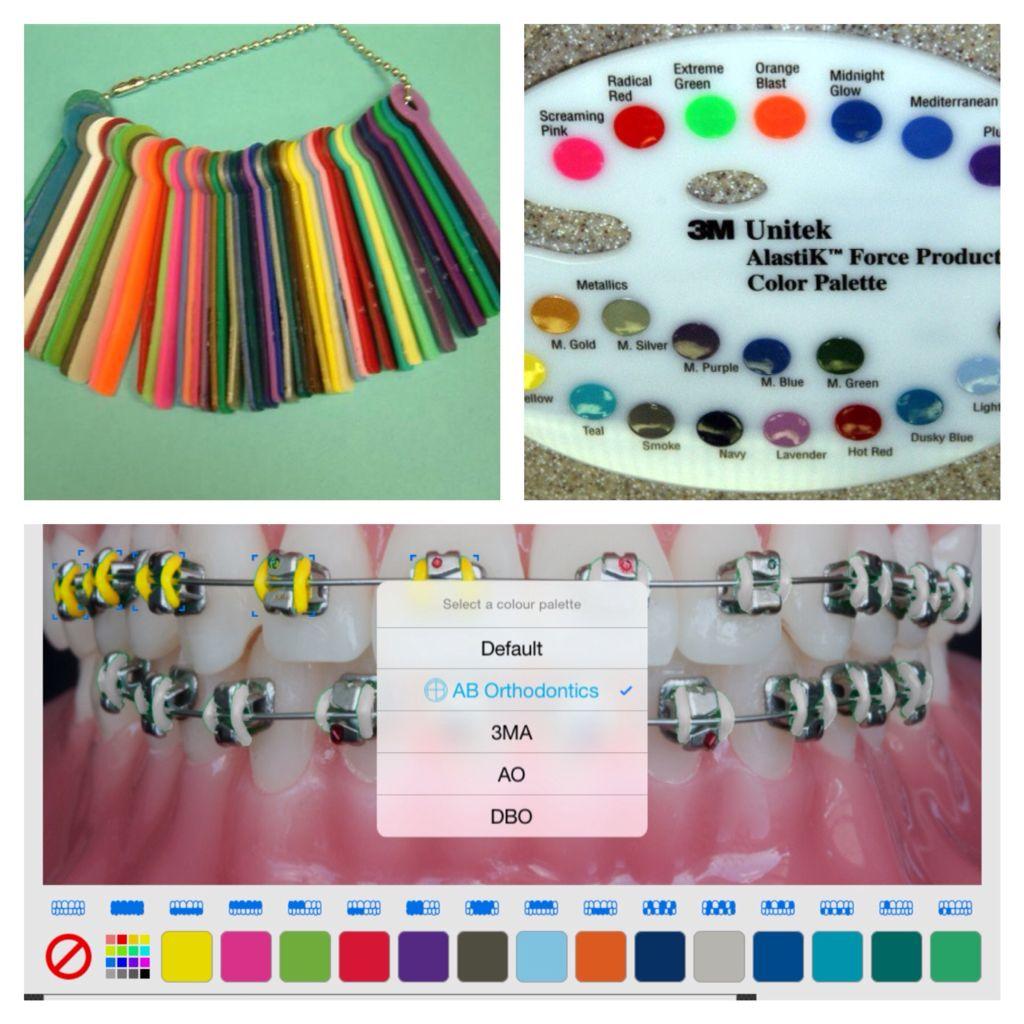 Braces Color Choices - Braces colors